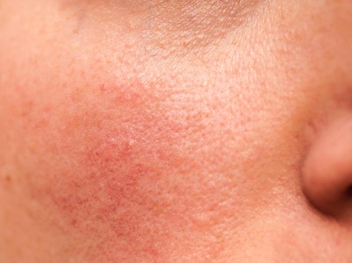 crema arrossamento pelle bava lumaca