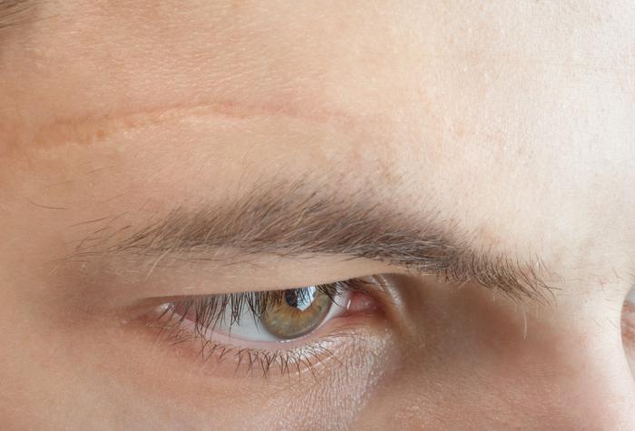 crema cicatrici viso bava lumaca